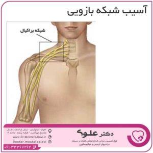 آسیب شبکه بازویی دکتر مصطفی علوی
