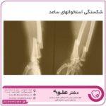 شکستگی استخوانهای ساعد