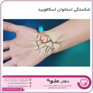 شکستگی استخوان اسکافویید دکتر مصطفی علوی