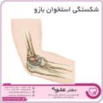 شکستگی استخوان بازو