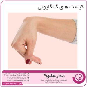 کیست های گانگلیونی دکتر مصطفی علوی